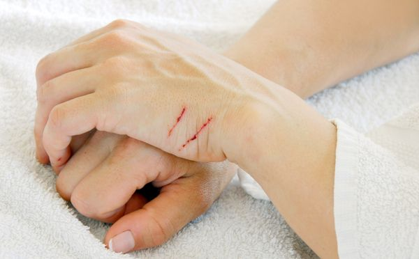 600px-cat-scratches-on-hand.jpg